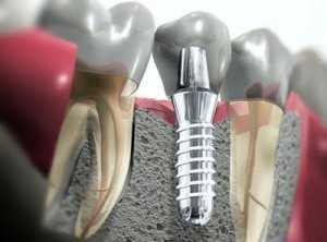 impianti-dentali-1-300x222