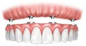 overdenture serbia tursimo dentale