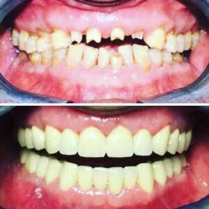 prima e dopo loperazione ai denti a belgrado